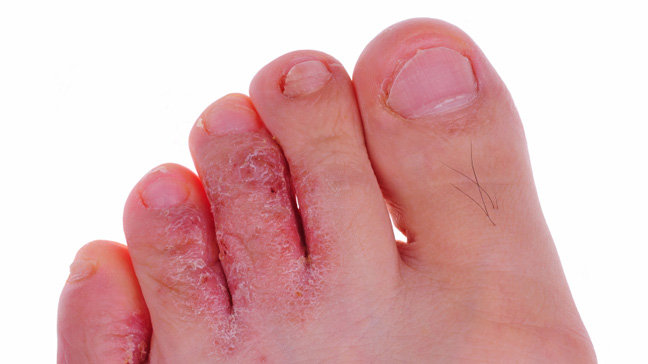 ARE YOU SUFFERING FROM ATHLETE'S FOOT?
