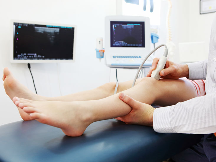 What is a Doppler ultrasound?