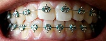Do you need dental braces?