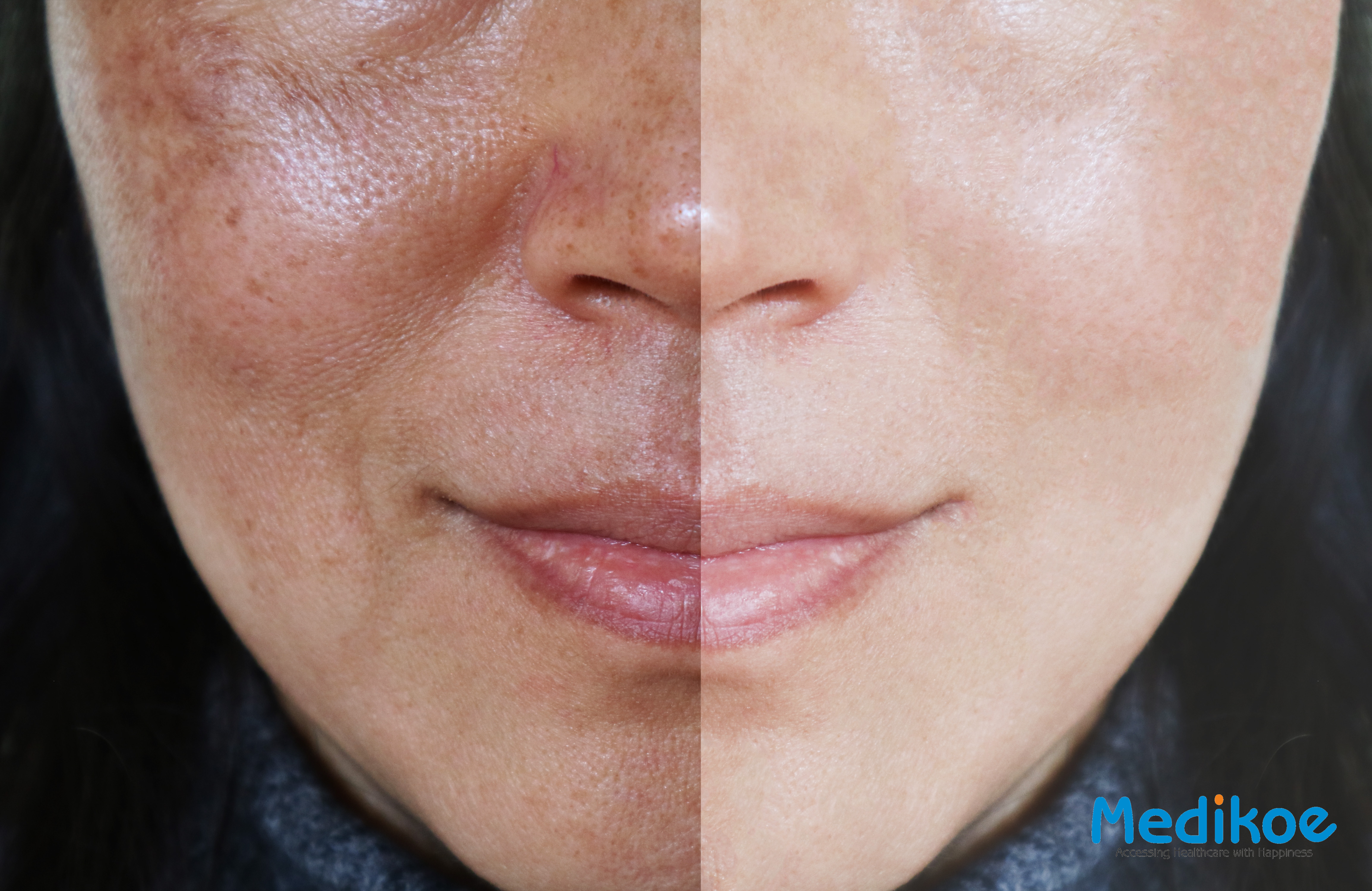 Natural Home Remedies To Get Rid Of Melasma Pigmentation