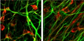 Potential cancer-causing genes removed from engineered stem cells