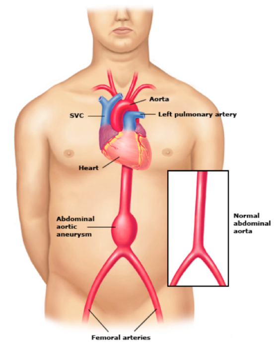 What are the symptoms of Abdominal Aortic Aneurysm?