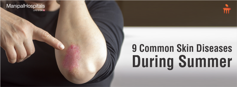 9 Common Skin Diseases During Summer