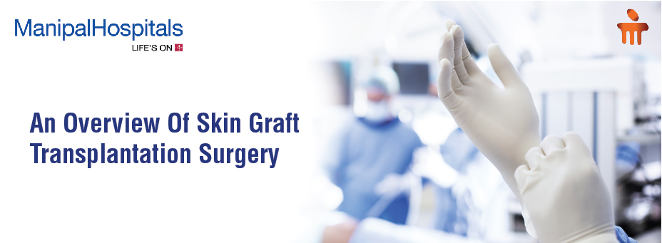 An Overview Of Skin Graft Transplantation Surgery