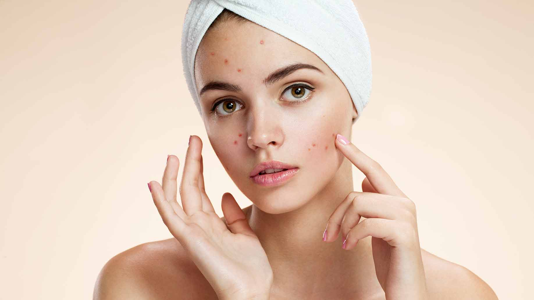 WHAT'S CAUSING YOUR ACNE?