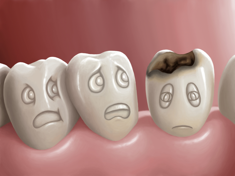 Tooth Cavites: Symptoms and Causes