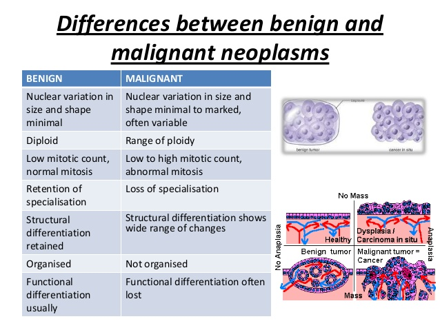 What is the Difference between malignant tumors and benign tumors ?