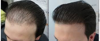 Prepare Yourself In Advance for Hair Transplant