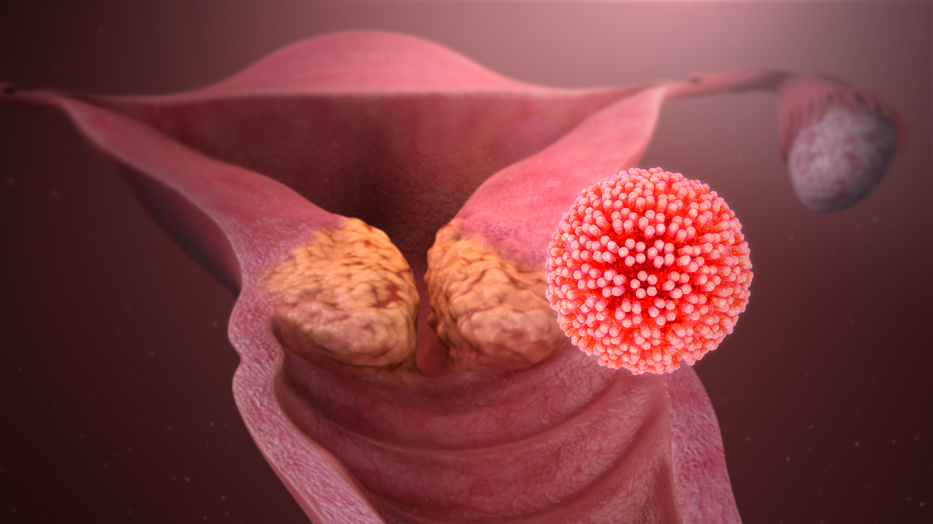Human Papilloma Virus: The main causes of cervical cancer