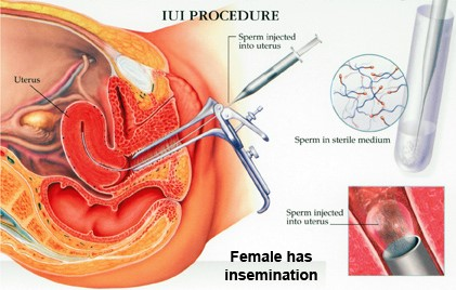 What is Intrauterine Insemination (IUI- type of artificial insemination)?