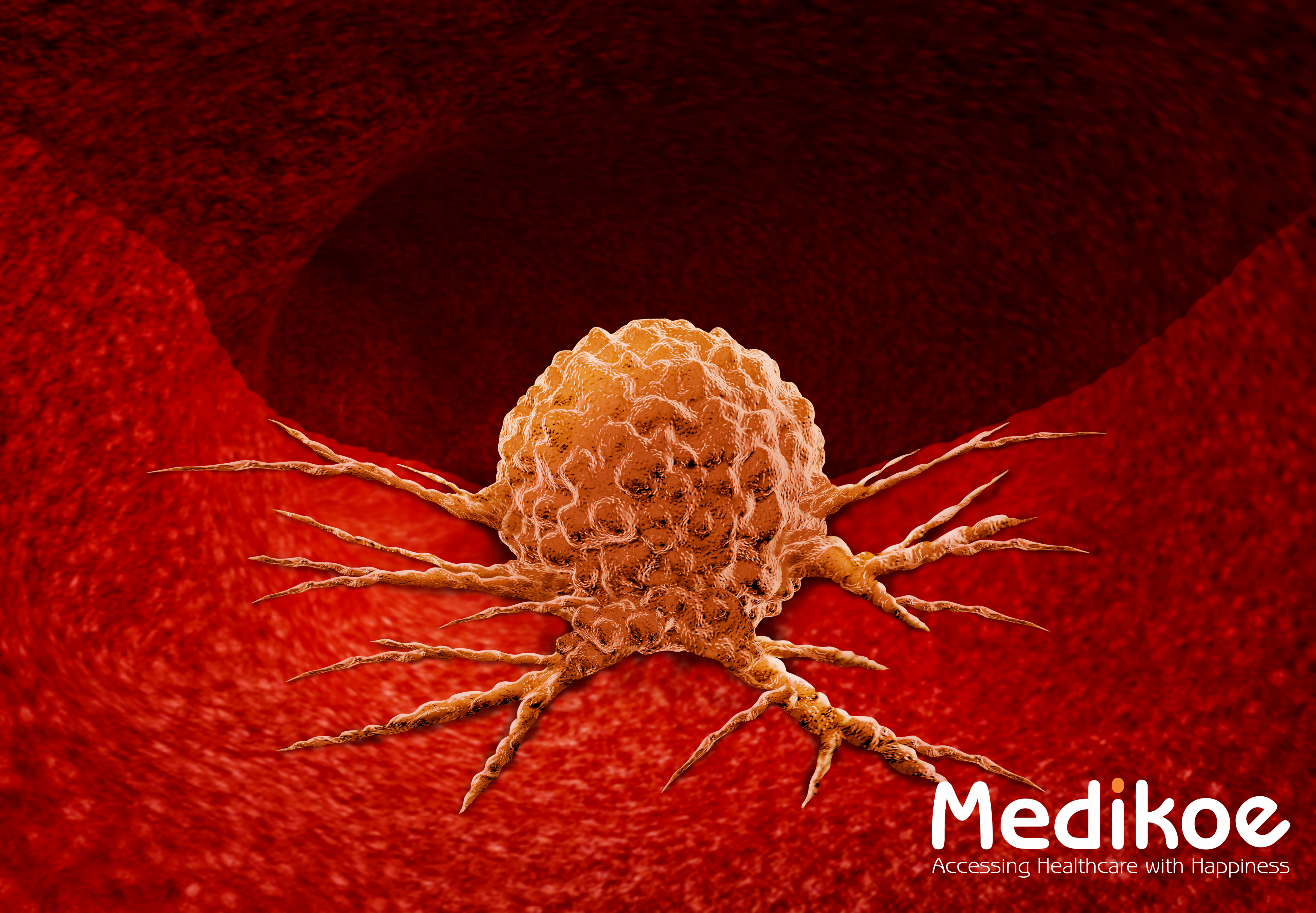 Difference between malignant tumor and benign tumor