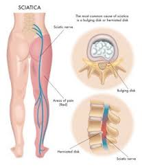 Role of ayurveda in treating Sciatica