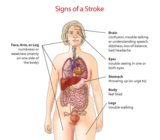 How will I know whether I have had a stroke?