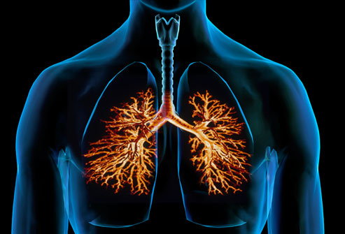 Bronchitis: Symptoms and treatment