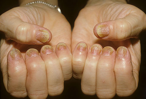 PSORIASIS: WHAT IS PSORIASIS?