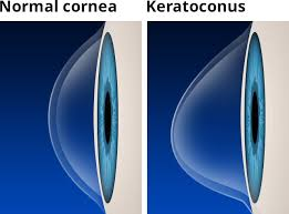 Keratoconus-Eye care