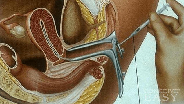 What is Intra Uterine Insemination?