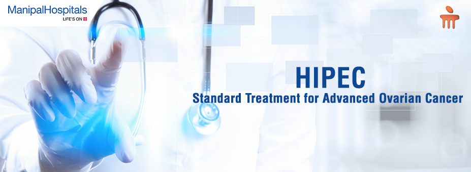 HIPEC – standard treatment for advanced ovarian cancer