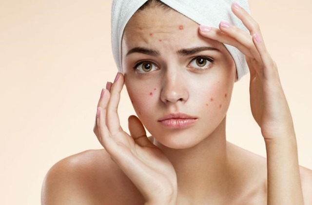Homeopathic remedies for acne and acne scars