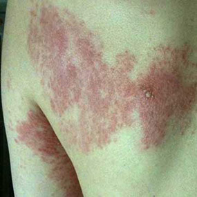 SHINGLES: CAUSES, SYMPTOMS & TREATMENT- Dr. Rashmi.