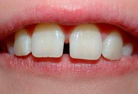 Worried about gaps between your teeth?
