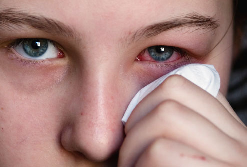All About Conjunctivitis