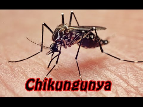CHIKUNGUNYA: CAUSES, SYMPTOMS & PREVENTION- Dr. Ravikeerthy