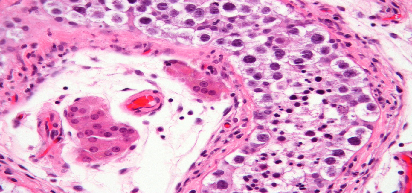 What is Neoplasm?