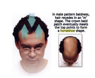 Did you know there more than 40 types of hair loss patterns