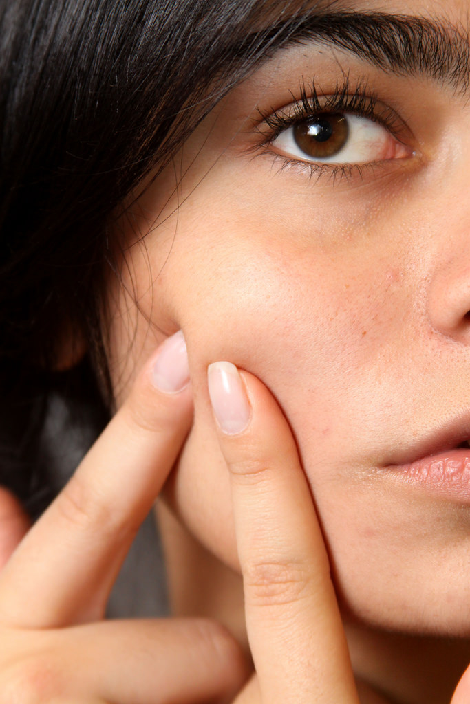 Homeopathic remedies for acne