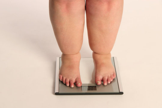 Genetic Mutation for Severe Obesity Risk