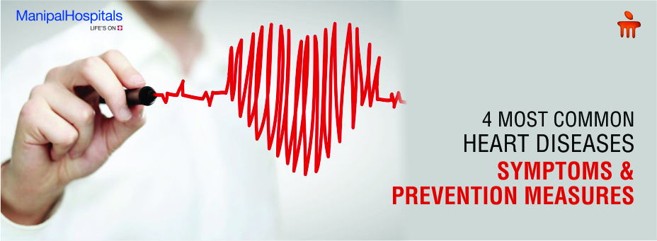4 Most Common Heart Diseases: Symptoms and Prevention Measures