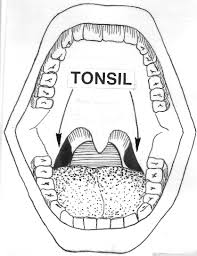 EVERYTHING YOU NEED TO KNOW ABOUT TONSILLITIS