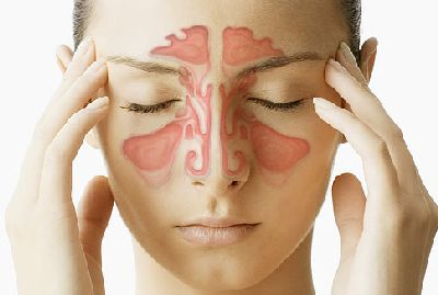 Tips And Home Remedies To Fight With Sinus Headache