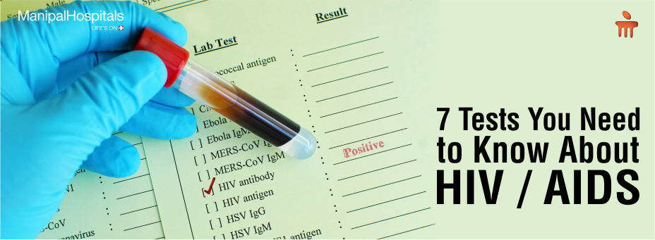 7 Tests You Need To Know About HIV/AIDS