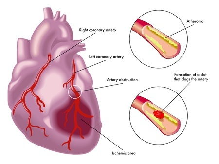 Causes of ARRHYTHMIA-(problem in either the rate or rhythm of the heart beat )