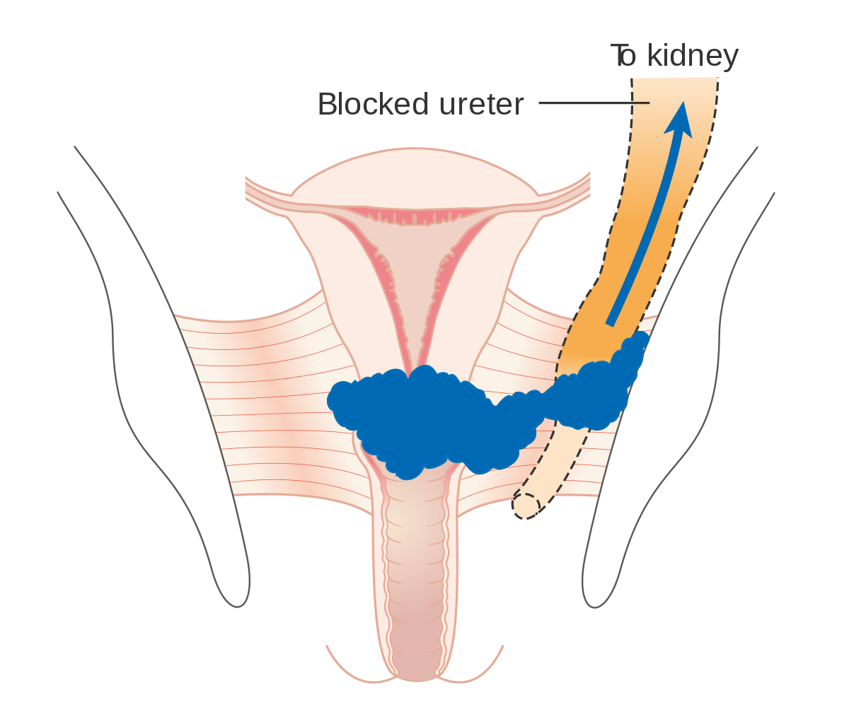 What is Cervical Cancer?