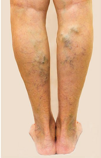 Are you suffering from varicose veins?