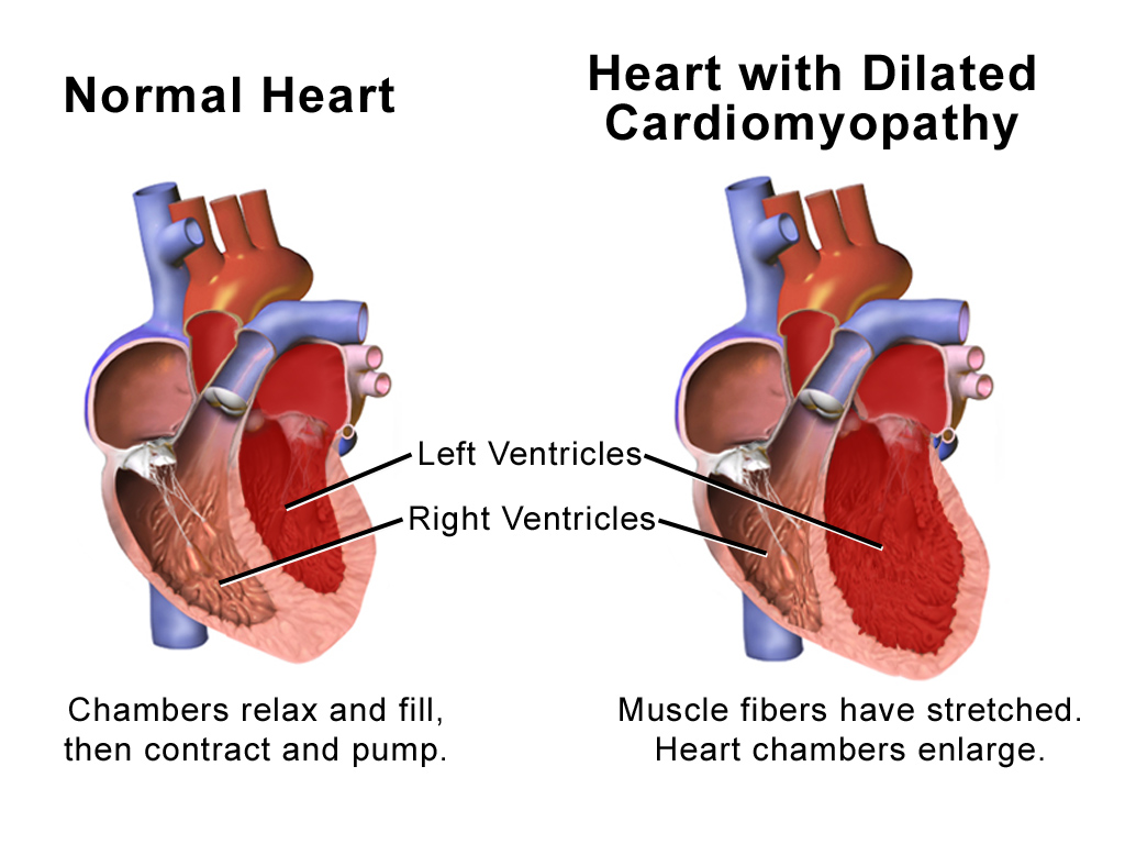 Treatment of CARDIOMYOPATHY -diseases of the heart muscle