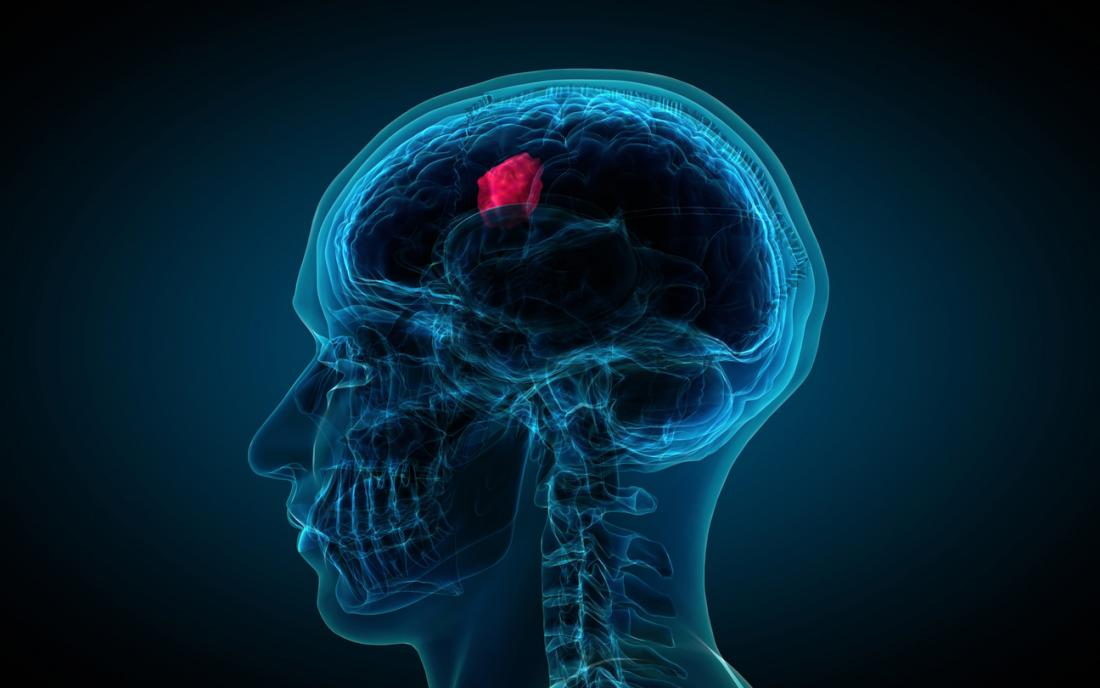 What can cause the Tumor in the Head?