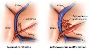 What is AV-arterio-venous malformation ?