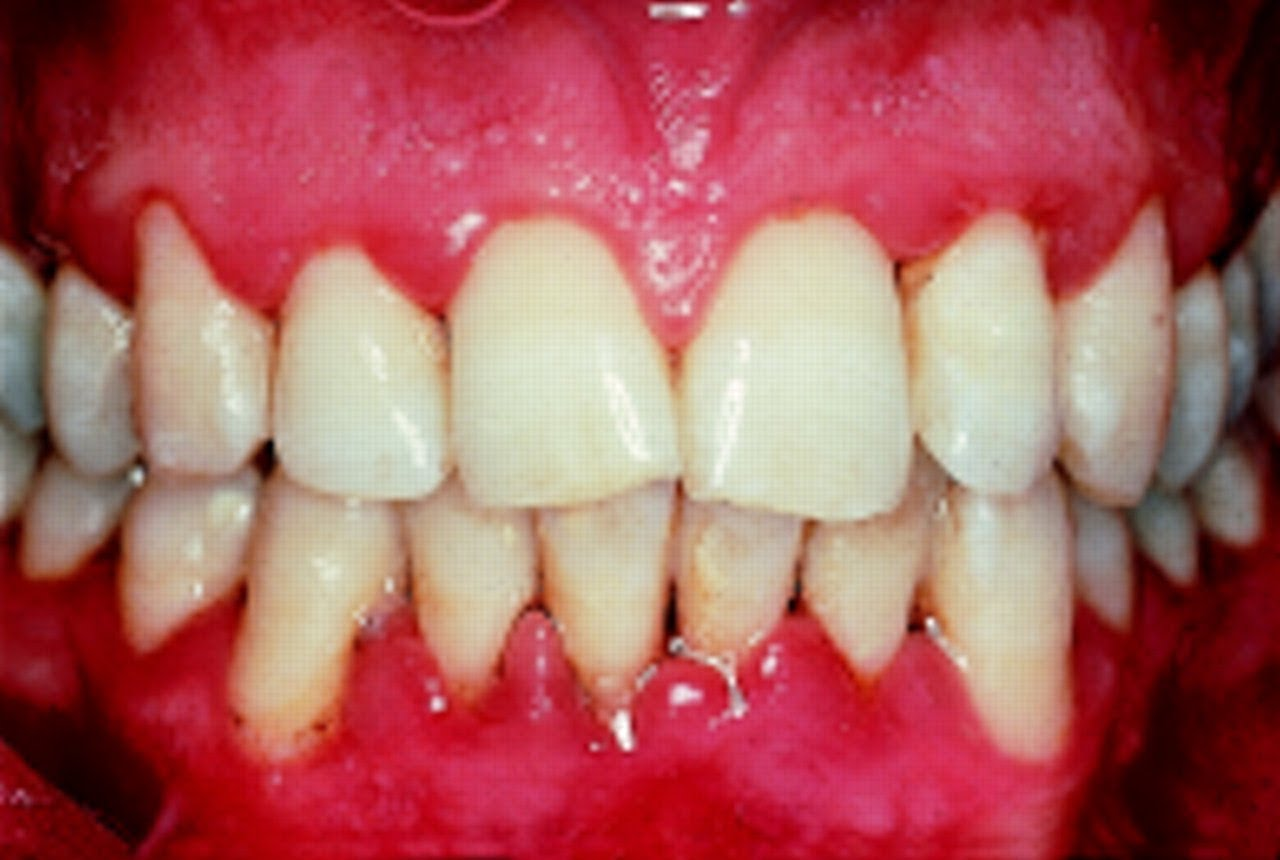 What are the early signs of Gingivitis?