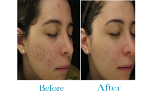 WHAT MAKES ACNE SCARS BETTER?