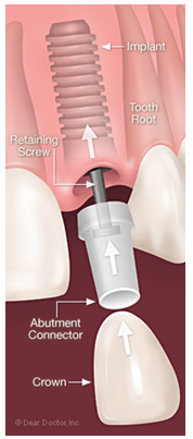 DENTAL IMPLANTS AND ROOTS