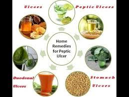 8 Home Remedies for Peptic Ulcers