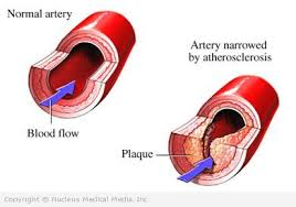 Complications of hardening and narrowing of the arteries-ATHEROSCLEROSIS
