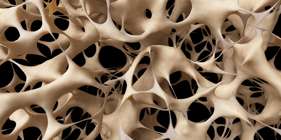 Are you victim of Osteoporosis?
