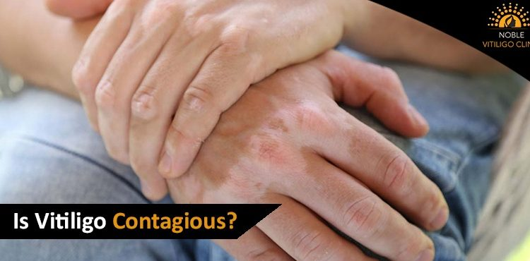 Does Vitiligo Spread From One Person To Another?