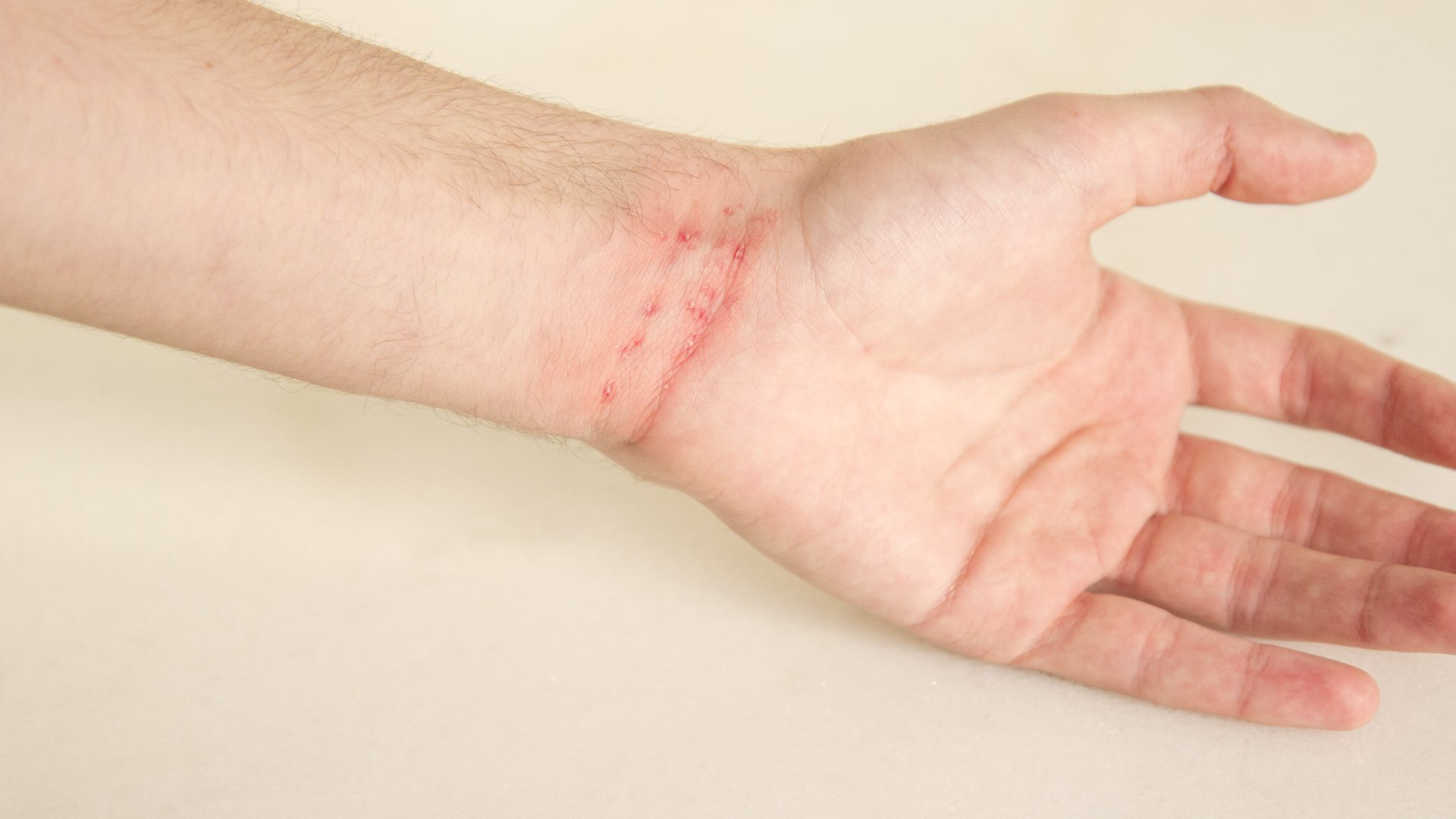 What is Scabies?