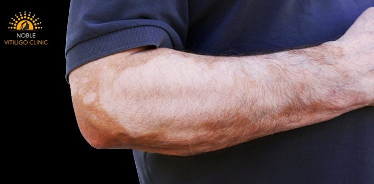 Get Valuable Facts On Causes & Diagnosis Of Vitiligo/ White patches
